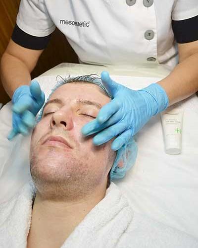 Курс программы Acnelan для лечения акне — 2-я процедура