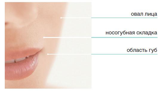 Области нанесения препаратов биоревитализации - Нижняя часть лица
