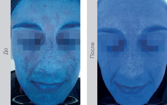 Техника выполнения инъекций - Изображение UV