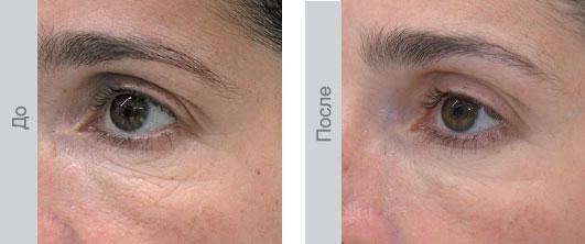 До и после 5 сеансов биоревитализации - Область вокруг глаз