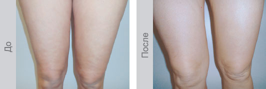 До и после 10 сеансов биоревитализации - Бедра и колени