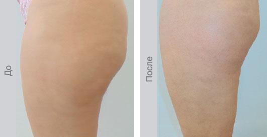 До и после 10 сеансов биоревитализации - Бедра и ягодицы