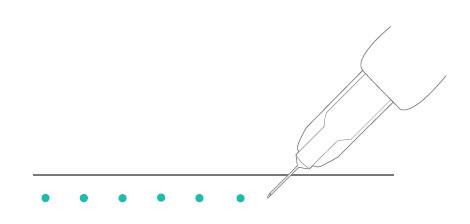 Введение инъекций биоревитализации по точкам