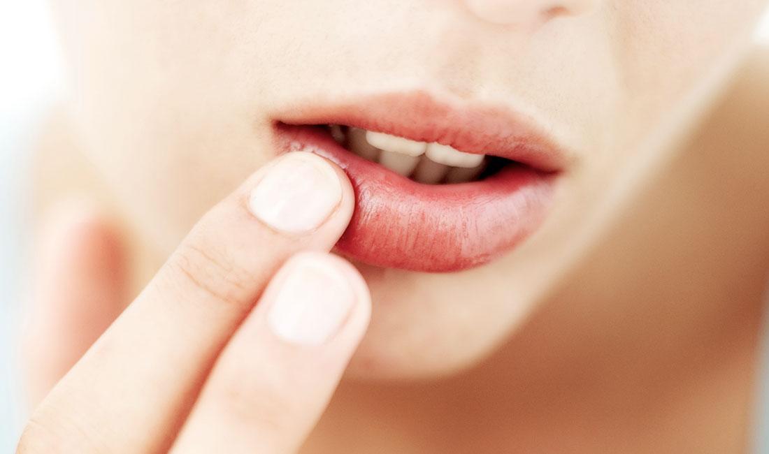 Как правильно ухаживать за кожей губ в домашних условиях