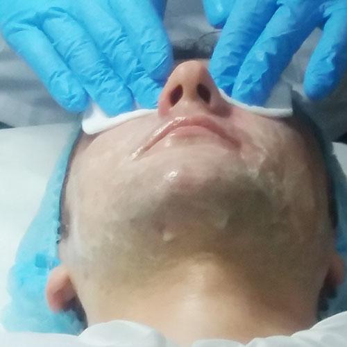 4 - Протокол процедуры: Нейтрализация маски