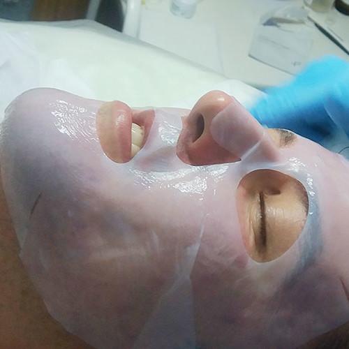5 - Протокол процедуры: Успокаиваем кожу